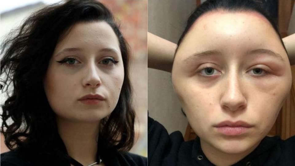 Rumbos | Quiso cambiar su look y quedó desfigurada